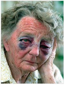 Ethel Kyte, 81, after Aaron Rhys McDonald bashed her on Christmas Day in 1997 (Stuff.co.nz)