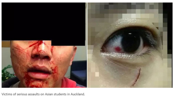 Asian students attacks by auckland gangs