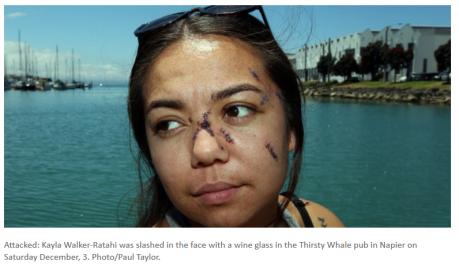 glassing-victim